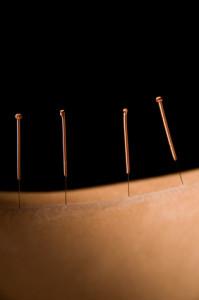 Klassische Akupunktur-Behandlung in Köln, Cornelia Vollmar